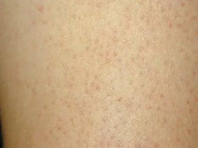 Прыщи на ногах - 120 фото и советы дерматологов как убрать прыщи
