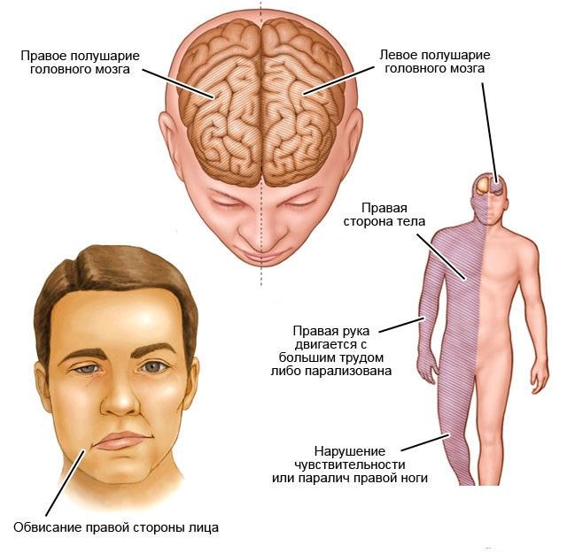 Причины, симптомы, формы и диагностика ишемического инсульта головного мозга