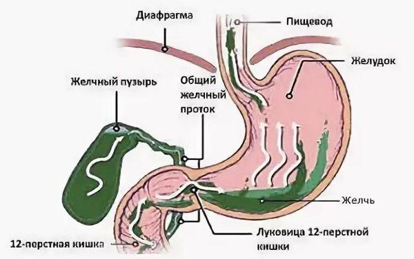 Рефлюкс-гастрит: причины, симптомы, лечение, диета | компетентно о здоровье на ilive