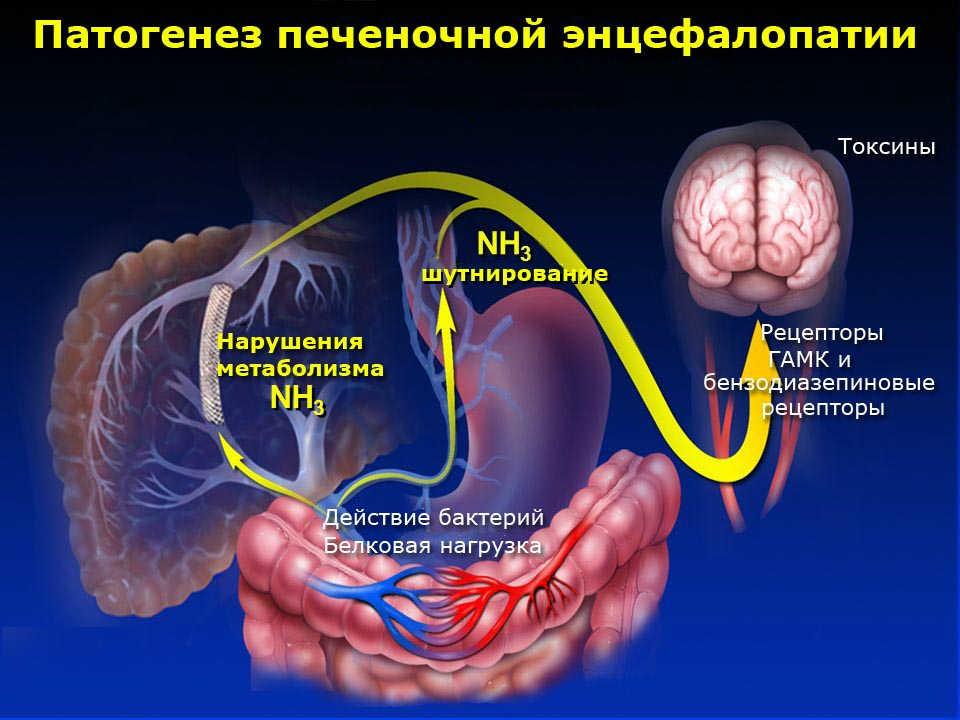 Печеночная энцефалопатия, что это? симптомы и лечение, сколько с ней живут