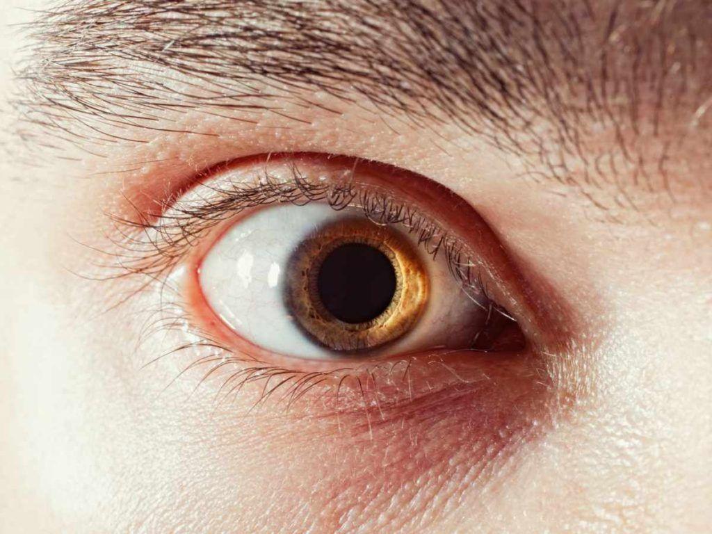 Виды мидриаза и что это такое?