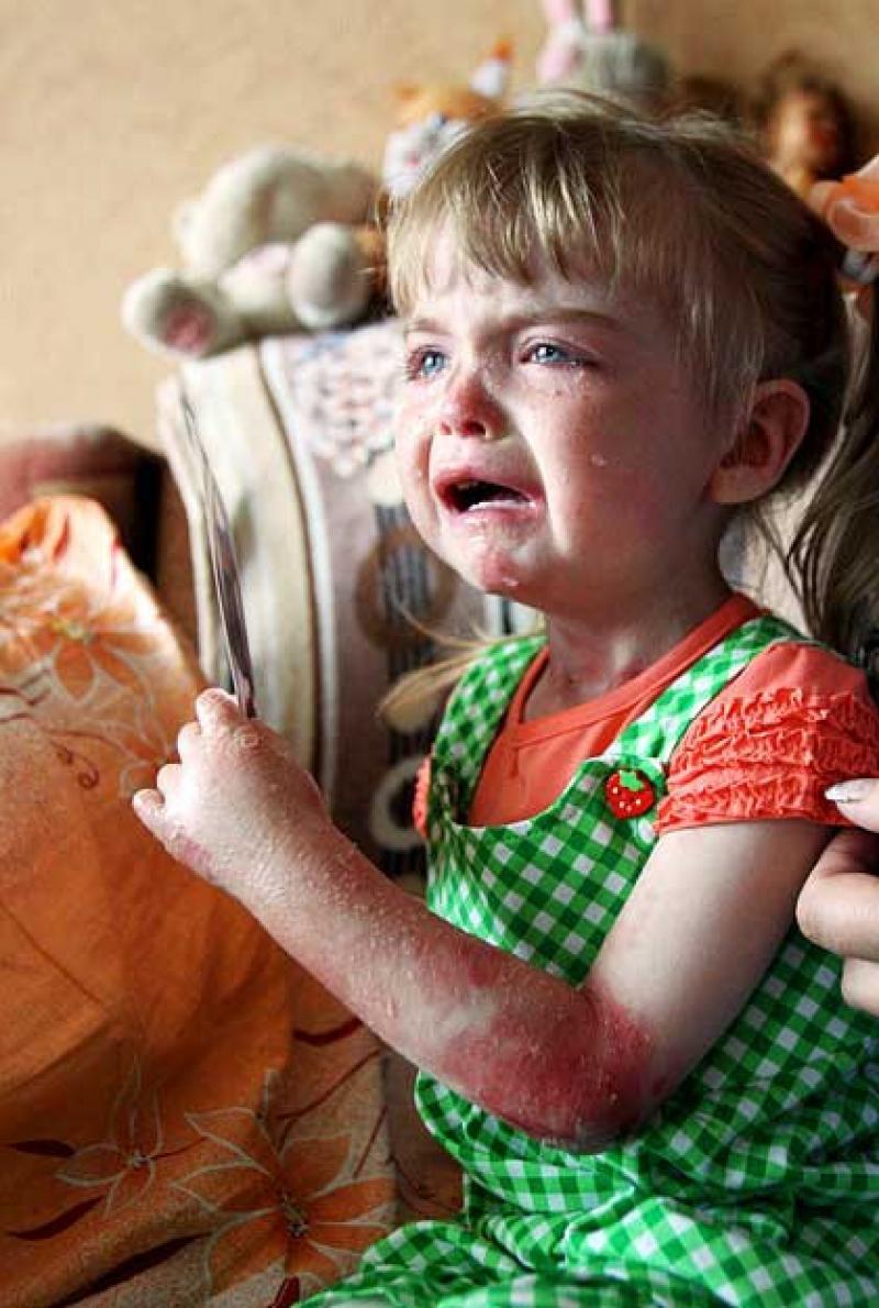 Буллезный эпидермолиз (болезнь бабочки у человека) – причины возникновения, симптомы, продолжительность жизни