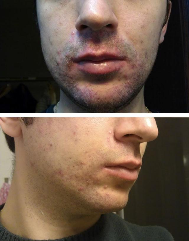 Демодекоз у человека на лице – фото, лечение препаратами, симптомы