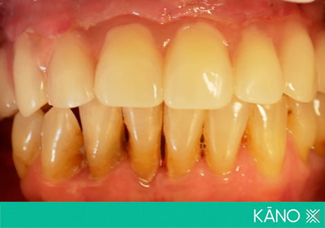 Пародонтоз: как возникает и способы лечения - много зубов