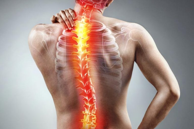 Дорсопатия шейного отдела позвоночника (шейная): симптомы