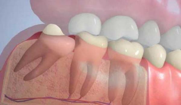 Ретенция зуба — что это такое, возможные причины и лечение