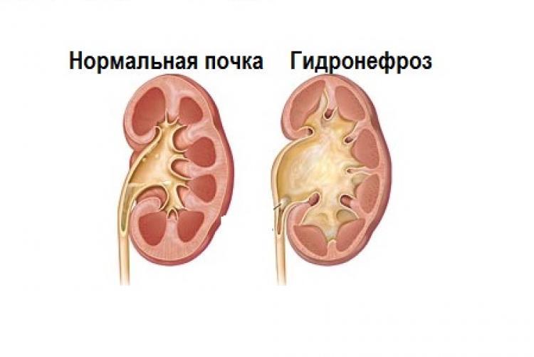 Гидронефроз: что это такое, причины возникновения, симптомы поражения почек, диагностика, лечение и профилактика + фото