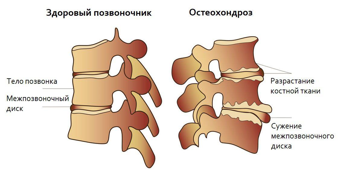 Дорсопатия – что это такое, как распознать и лечить патологию шейного, грудного и поясничного отделов спины?