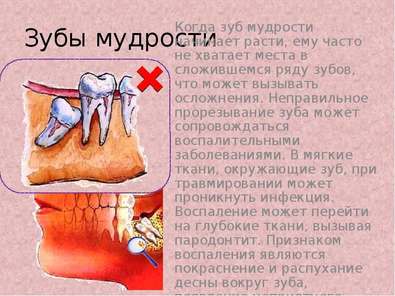Зубы мудрости - нарушение прикуса и прорезывание восмерок - удалять их или нет?
