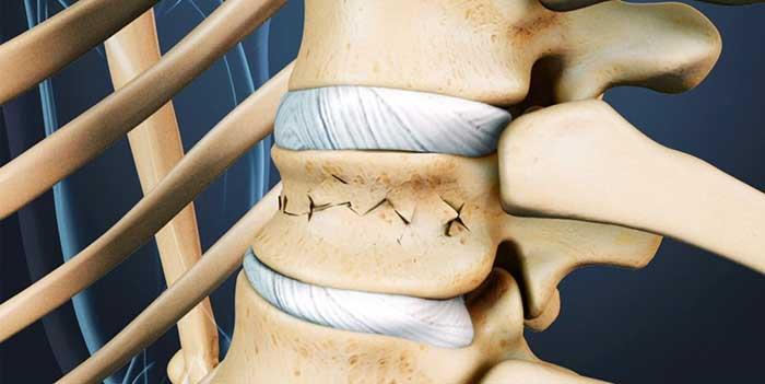 Компрессионный перелом грудного отдела позвоночника (позвонка): чем грозит, симптомы, признаки, лечение, последствия