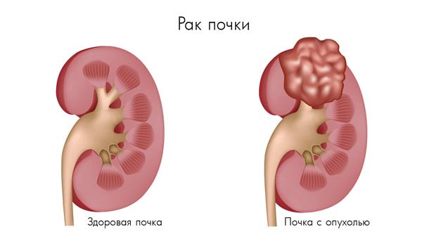Ангиомиолипома почки (правой или левой): что это такое, лечение, противопоказания