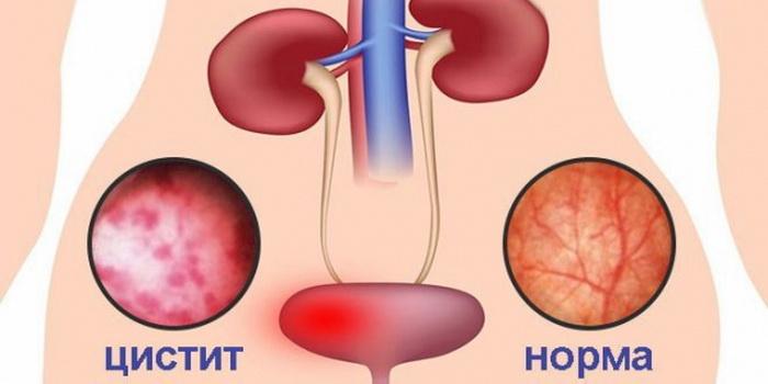 Цистит - симптомы, методы диагностики и лечения. лекарства