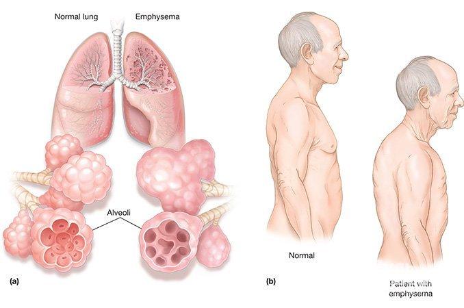 Пневмофиброз легких – что это такое, чем грозит заболевание, как его лечить?