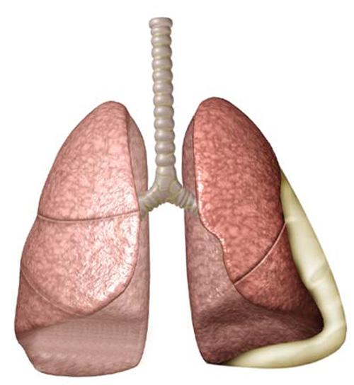 Плеврит - лечение, симптомы, экссудативный плеврит легких