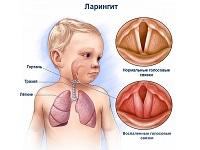 Ларингит: симптомы и лечение у взрослых (препараты и лекарства)