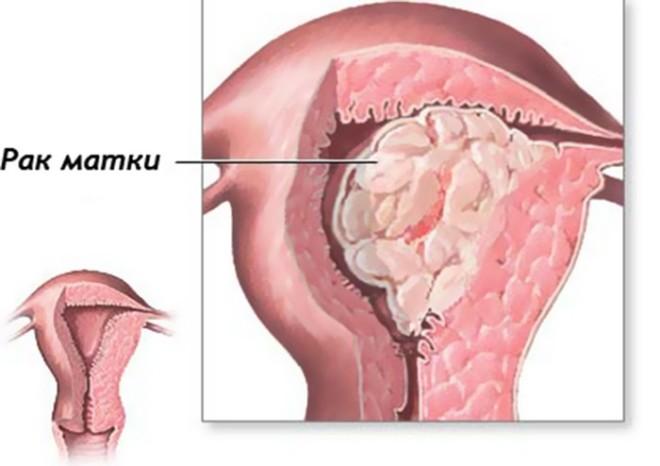 Чем отличается эндометриоз от гиперплазии эндометрия: симптомы