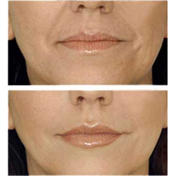 Плазмолифтинг лица: что это такое, как делается косметическая процедура