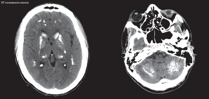 Что лучше - мрт или кт головного мозга: показания и важнейшие характеристики