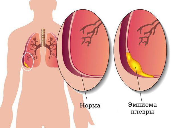 Орз и орви: что за болезни скрываются за схожими названиями