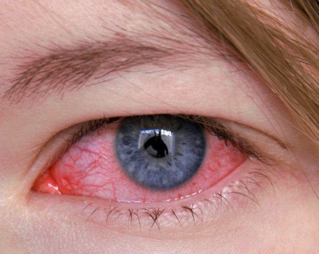 Кератит – прогноз, осложнения, диагностика и лечение в цэлт!