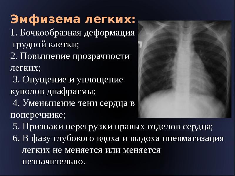Эмфизема легких: что это такое? симптомы и лечение у взрослых