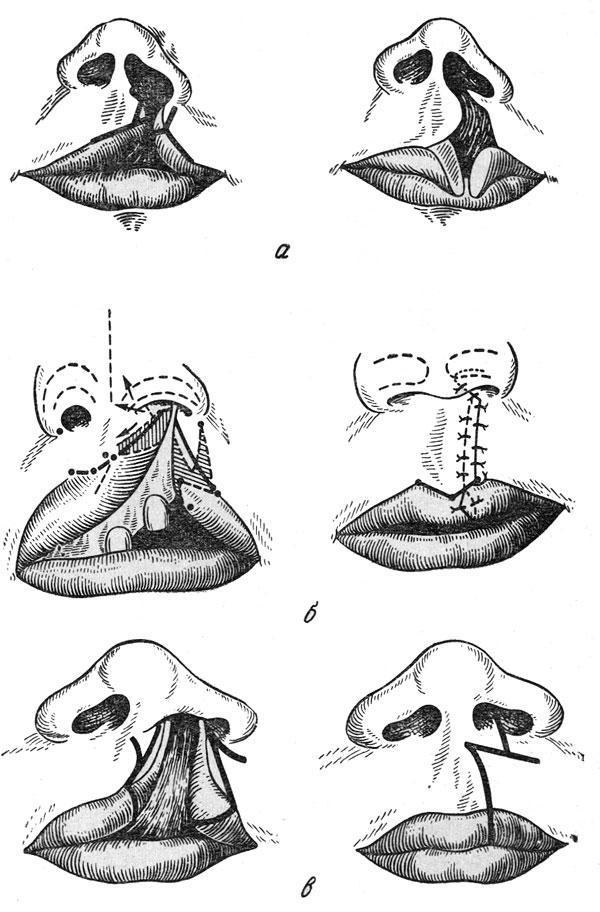 Порок заячья губа. почему рождаются дети с заячьей губой. двусторонняя заячья губа - новая медицина