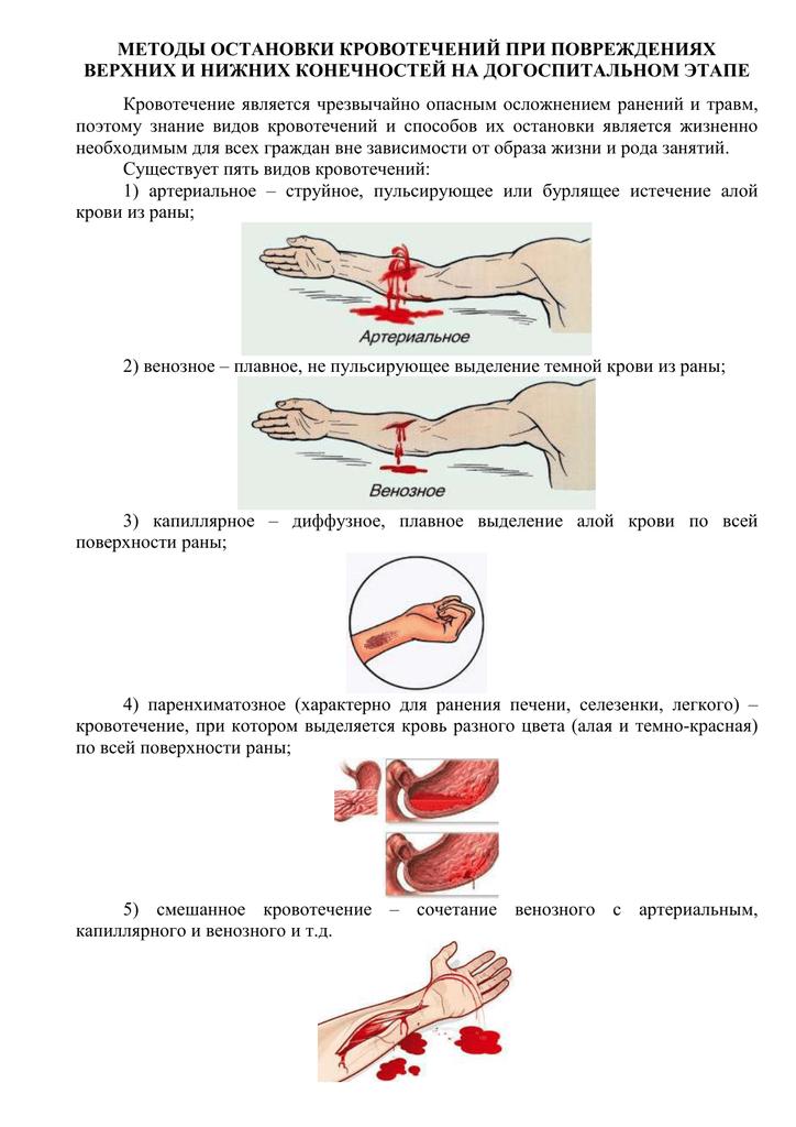 Кровотечение — википедия. что такое кровотечение