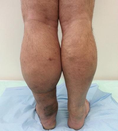 Тромбофлебит - что это за болезнь, симптомы, признаки и лечение