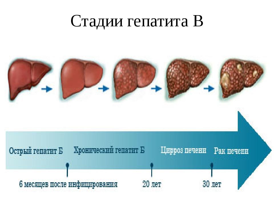 Чем отличается цирроз печени от рака: это онкология или нет?