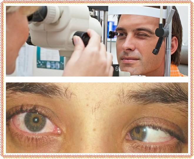 Дальнозоркость (гиперметропия): причины, симптомы и лечение у взрослых и детей