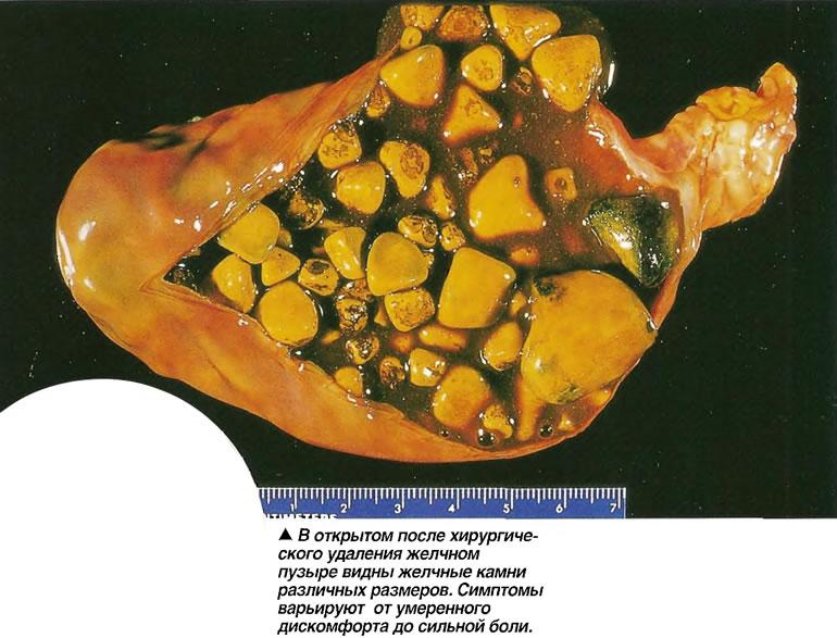 Конкремент желчного пузыря – что это, симптомы, причины, диагностика, лечение