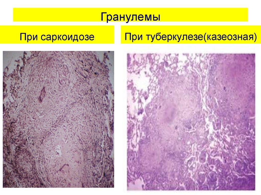 Пиогенная гранулёма: лечение, фото, симптомы и удаление