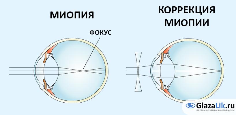 Близорукость - что это такое, степени миопии, причины, симптомы и лечение