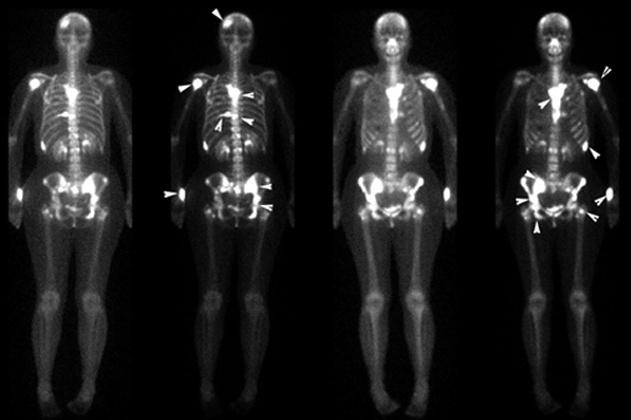 Сцинтиграфия костей скелета: что это такое и как ее проводят, сканирование и радиоизотопное исследование, остеосцинтиграфия