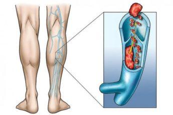 Что такое тромбофлебит нижних конечностей: симптомы, лечение, фото