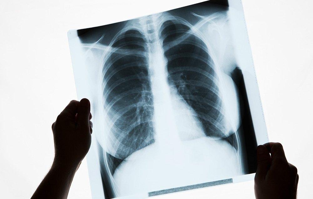 Болезнь чахотка: что это такое, симптомы и причины, первые признаки, туберкулез это одно и тоже, скоротечная, как передается, заразна или нет, какая у человека, лечили 3 стадии, называли, лекарство, чем отличается