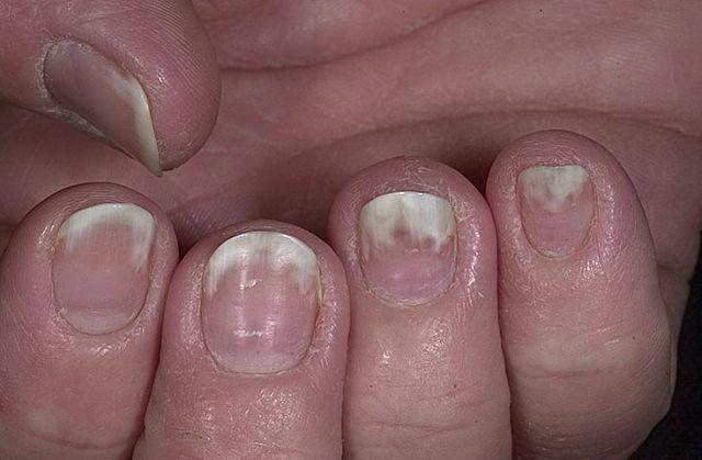 Онихолизис: причины, диагностика и лечение отслоения ногтя в москве