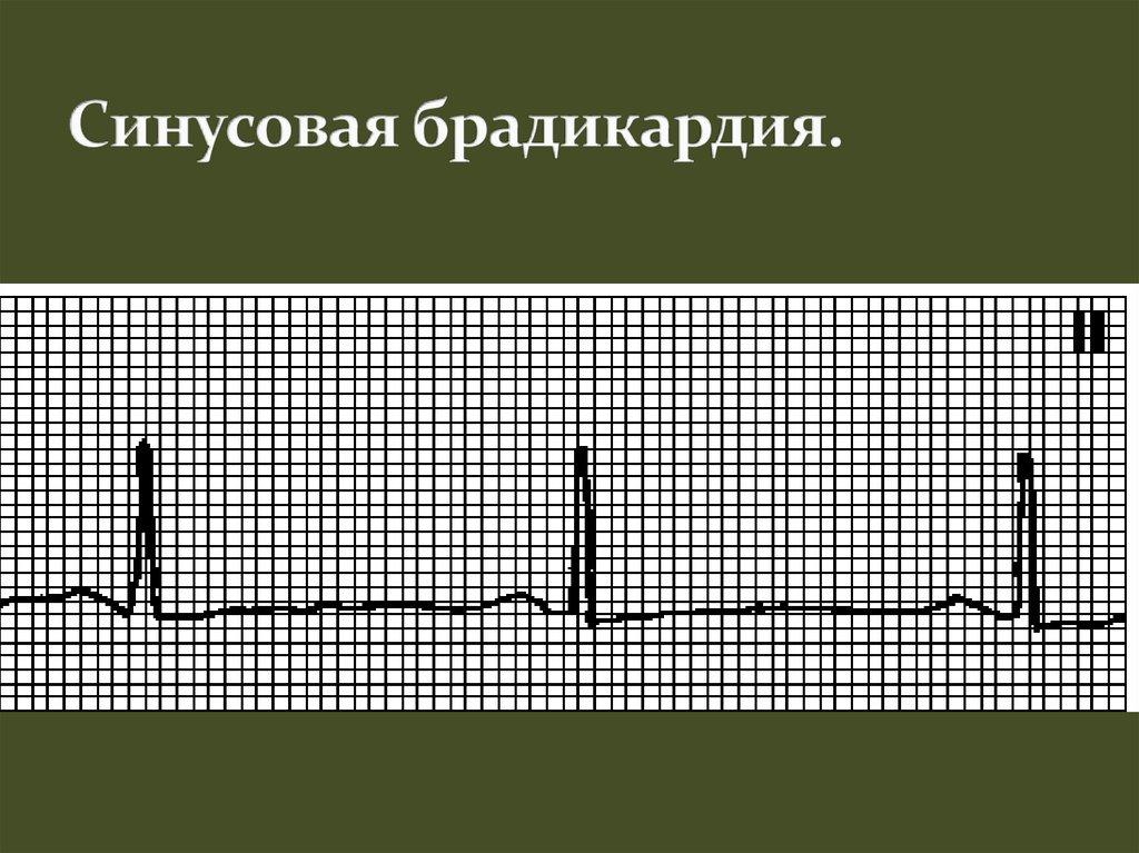 Брадикардия: симптомы и лечение синусовой брадикардии