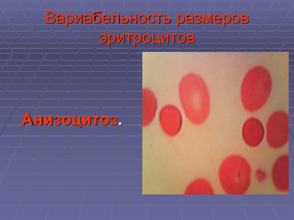 Микроцитоз в общем анализе крови: что это за патология?