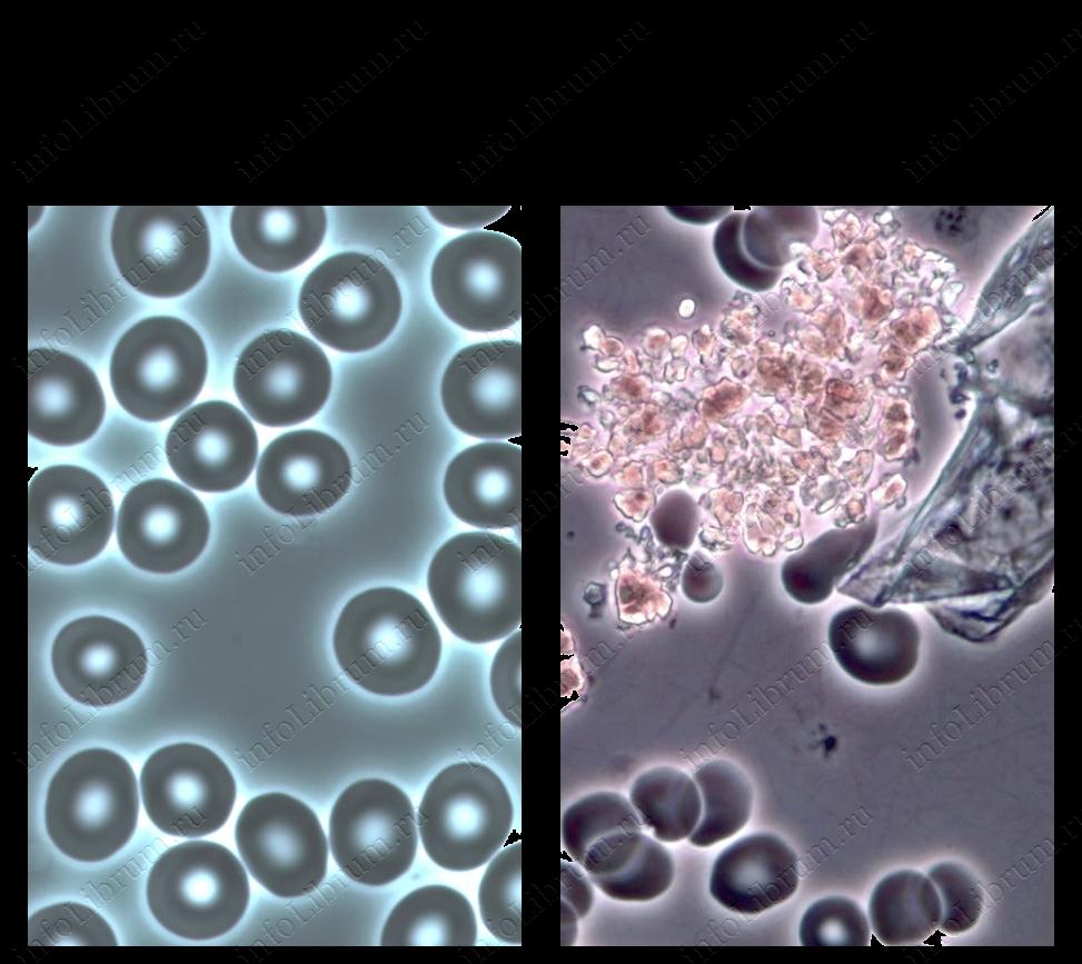 О чем говорит повышенная мочевая кислота в крови