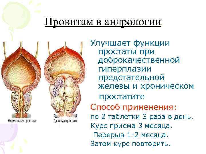 Что такое дгпж (аденома простаты) 2 стадии
