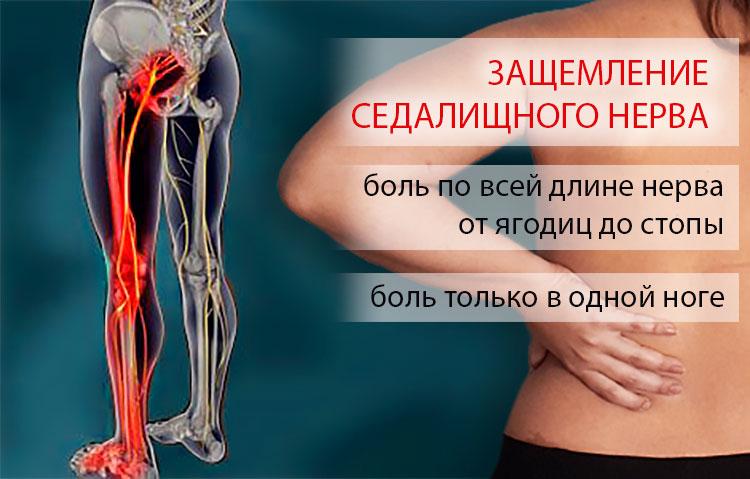 Ишиас - симптомы и боли, лечение в домашних условиях, препараты | здрав-лаб