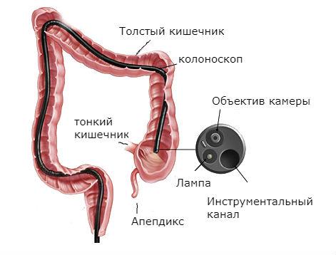 Что такое фиброколоноскопия, и как подготовиться к процедуре?