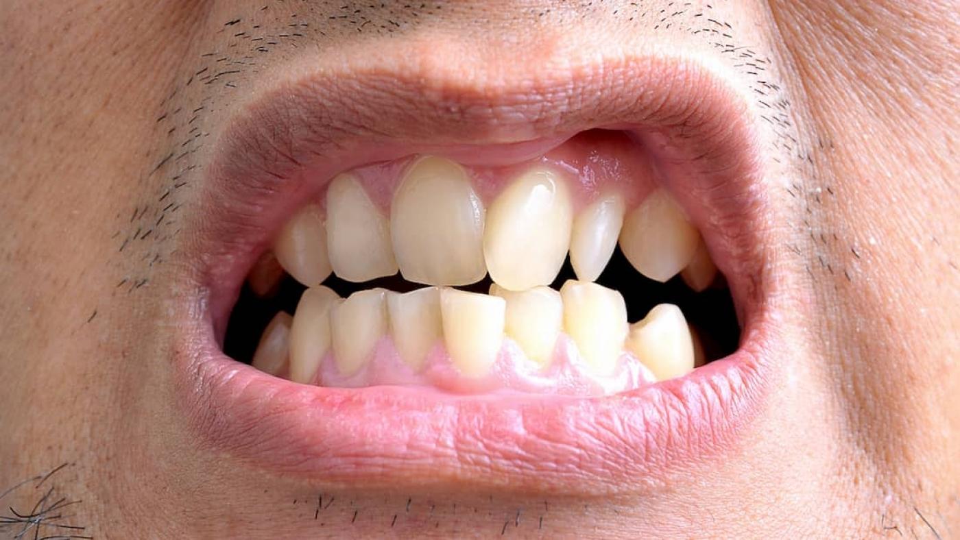 Трейнеры для зубов: что такое, виды, этапы изготовления и подбора