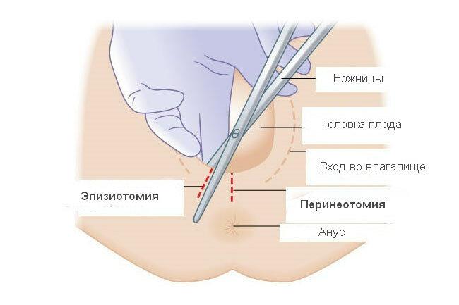 Эпизиоррафия: что такое эпизиотомия при родах, техника выполнения и особенности наложения швов