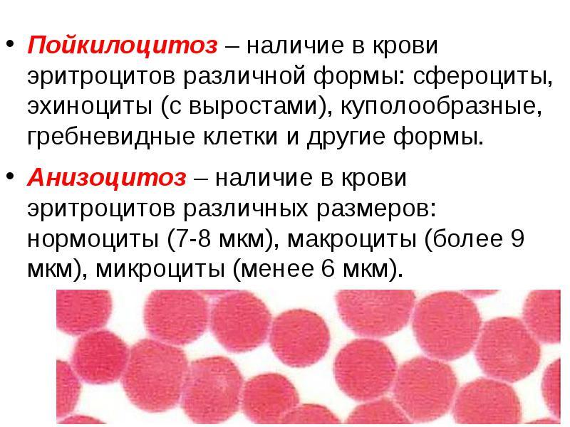 Анизоцитоз: что это такое в общем анализе крови, причины