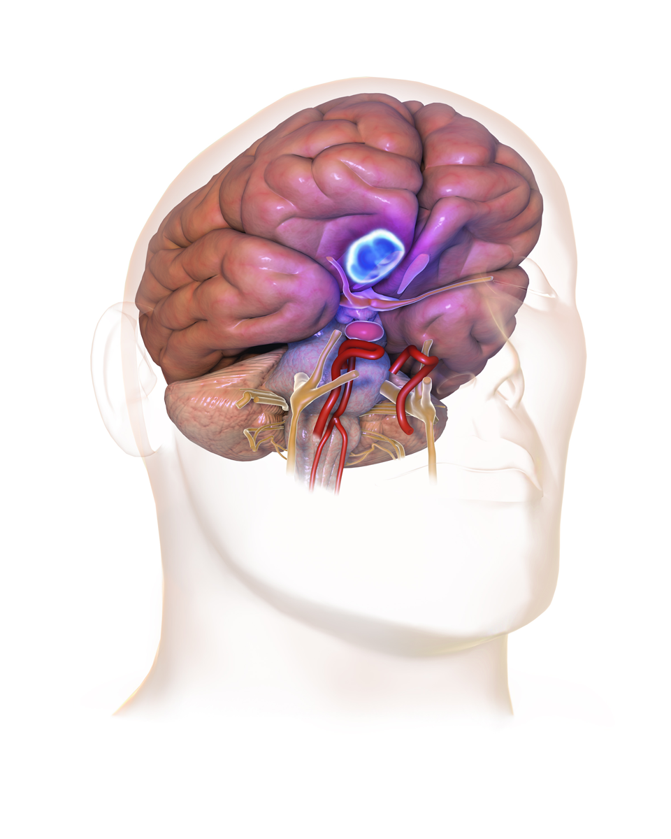 Менингиома: понятие, причины, проявления, лечение и удаление, прогноз
