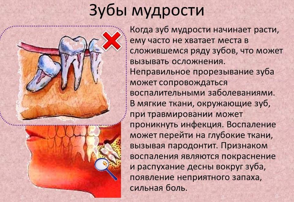 Как проходит удаление зуба мудрости, почему не стоит бояться