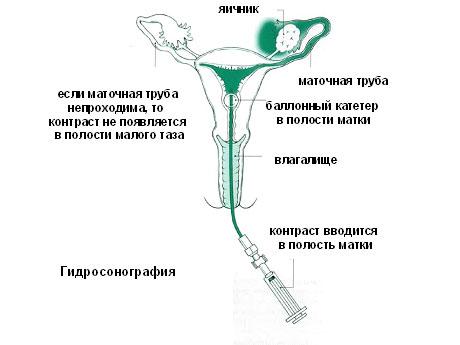 Чем опасны спайки в матке и маточных труб и возможна ли беременность ?