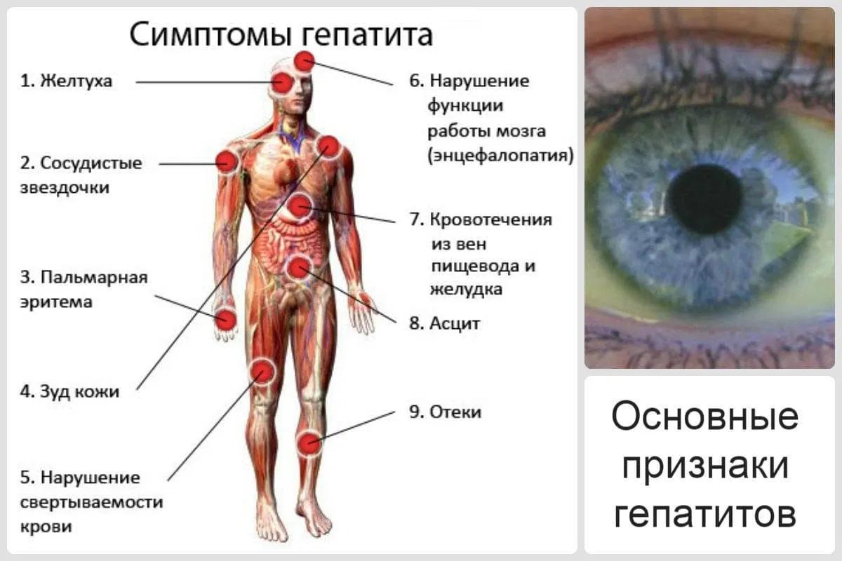 Вирус гепатита с: сложность выявления заболевания, симптомы, лечение